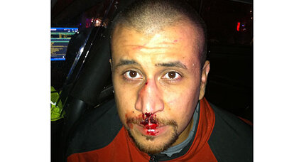 George Zimmerman's bloody nose in high-def: What does it reveal?