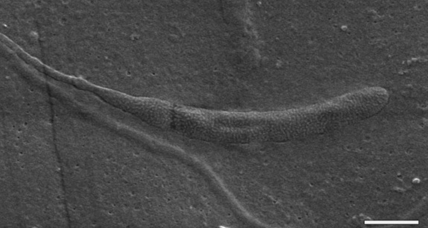 Antarctic expedition finds world's oldest sperm cells