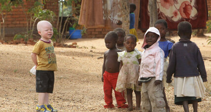 Why albinos are being killed in Malawi, and what's being done to stop it